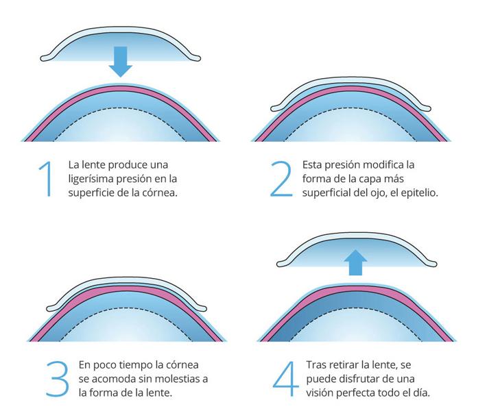 Optoclinic La Pau Altea Miopia Orto K